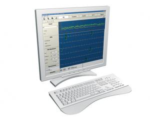 Upgrade Holter ecg voor CUBE software