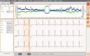CUBE ecg Holter software